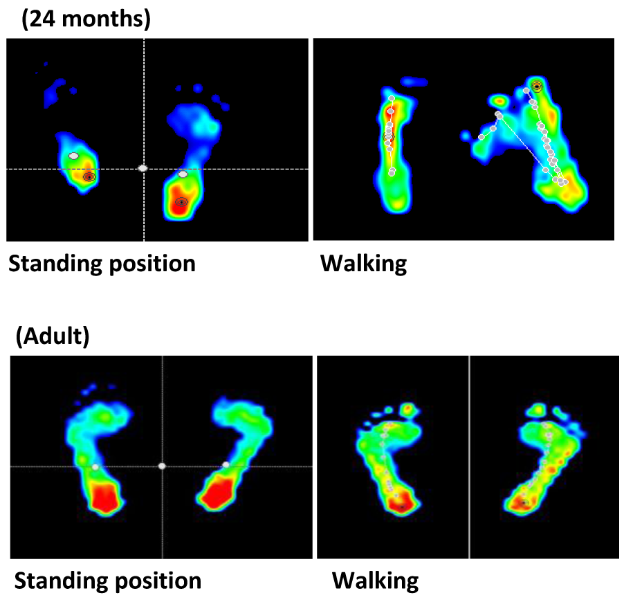 Plantar pressure assessment change depends on age and position